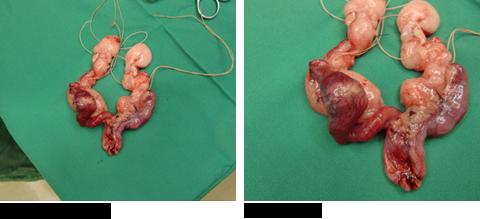 子宮内膜癌